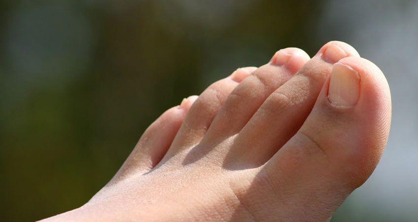 Heridas entre los dedos