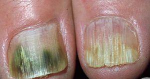 Hongos uñas pies