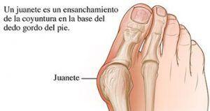 Prevención de Juanetes