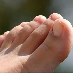 Heridas entre los dedos del Pie