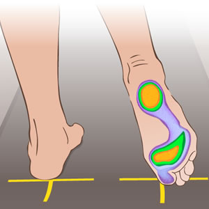El Mal apoyo del Pie, influye en el resto del Cuerpo