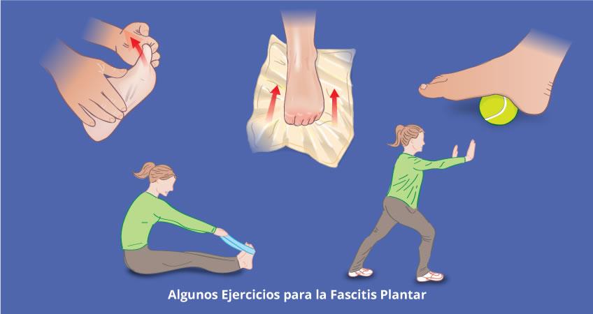 Fascitis Plantar Tratamiento Alicante, Torrevieja.