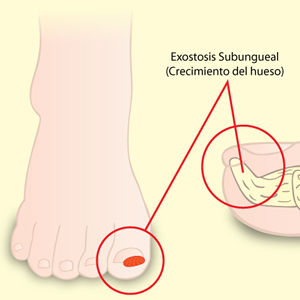 Exostosis Subungueal - Podólogo Torrevieja